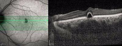 OCT scan of eye